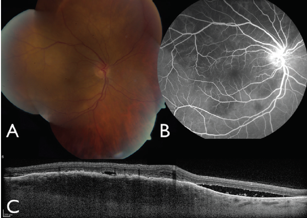 Choroidal Metastasis From Lung Cancer Seen In Temporal Portion Of Macula A Hypofluorescent On FA B And With Lumpy Bumpy Surface OCT C