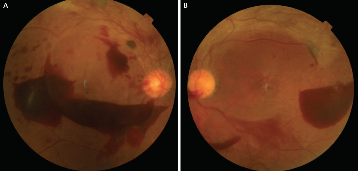 d4a96602e49 Fundus photos of a patient with proliferative diabetic retinopathy. Right  eye image shows preretinal heme