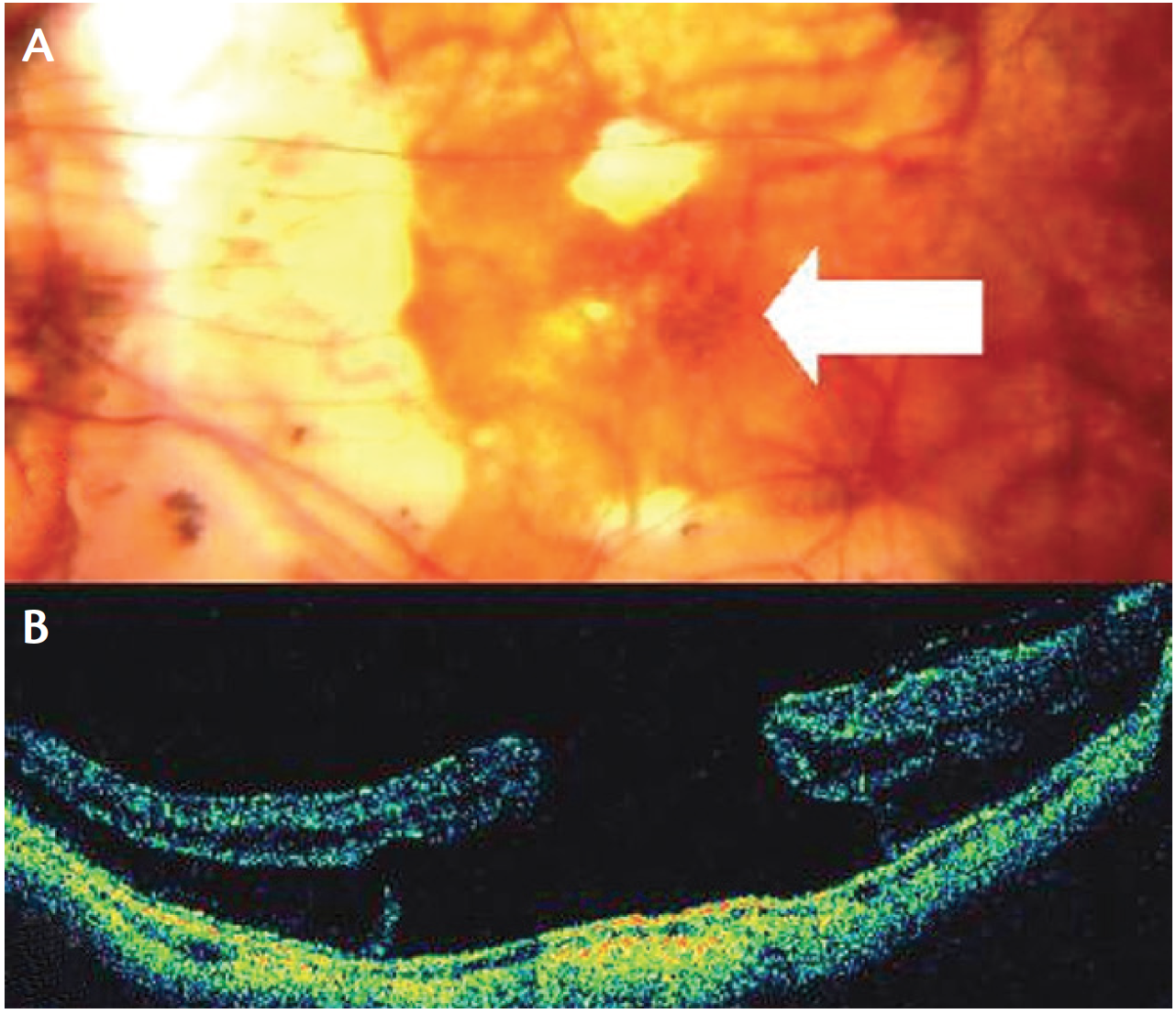 retinal detachment caused by steroids