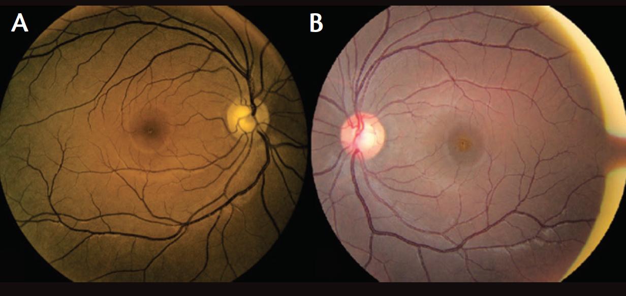Retina Today - Making a Diagnosis: Unilateral Acute ...