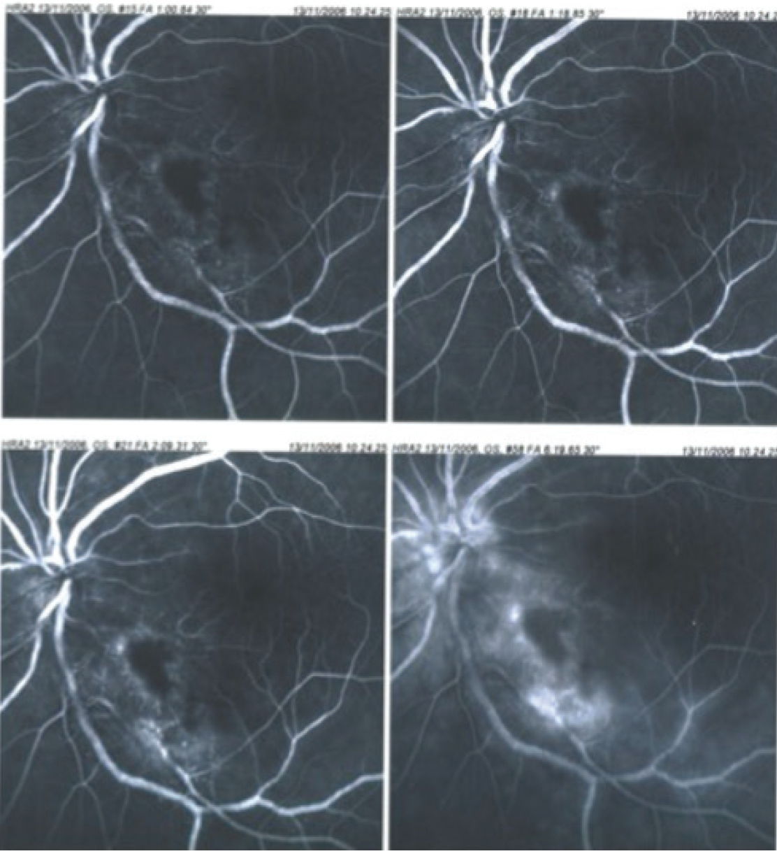 Retina Today - Papillophlebitis: a Closer Look (July/August