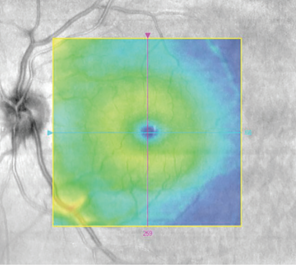 Retina Today Cant Hear Think See What Can This Be Silver Wiring Figure 5 Oct Reveals Normal Macular Architecture Os