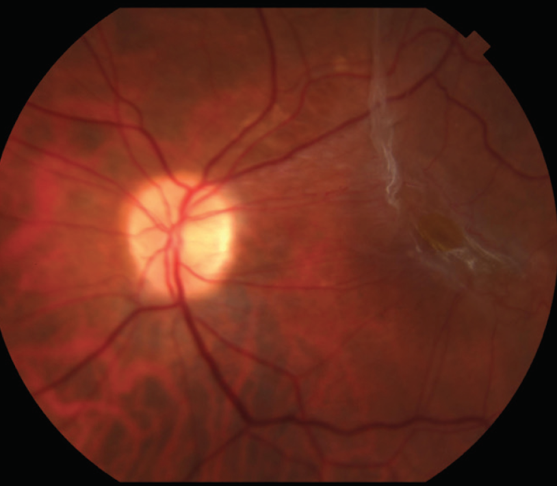 Figure 1 Fundus Color Photograph Of An Eye With ERM Showing Macular Traction Foveal Dystopia And Pronounced Leakage