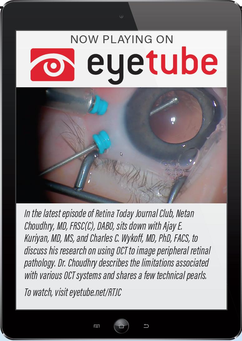 Retina Today - @RetinaToday (October 2018)
