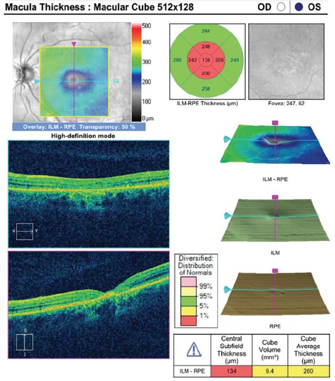 Figura 2. La OCT de dominio espectral demuestra atrofia retiniana central con pérdida retiniana externa.