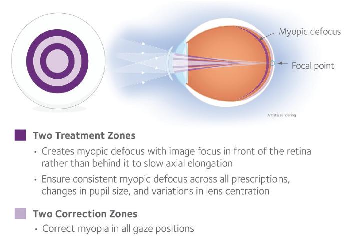 Miopia este posibil să devii orb Ce să fac dacă miopia