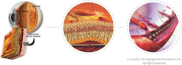Retina Pipeline: Wet AMD